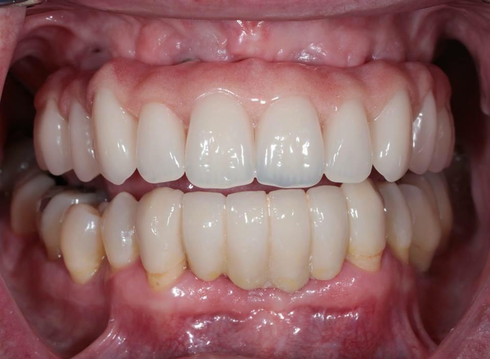 Dental Implants client 6a