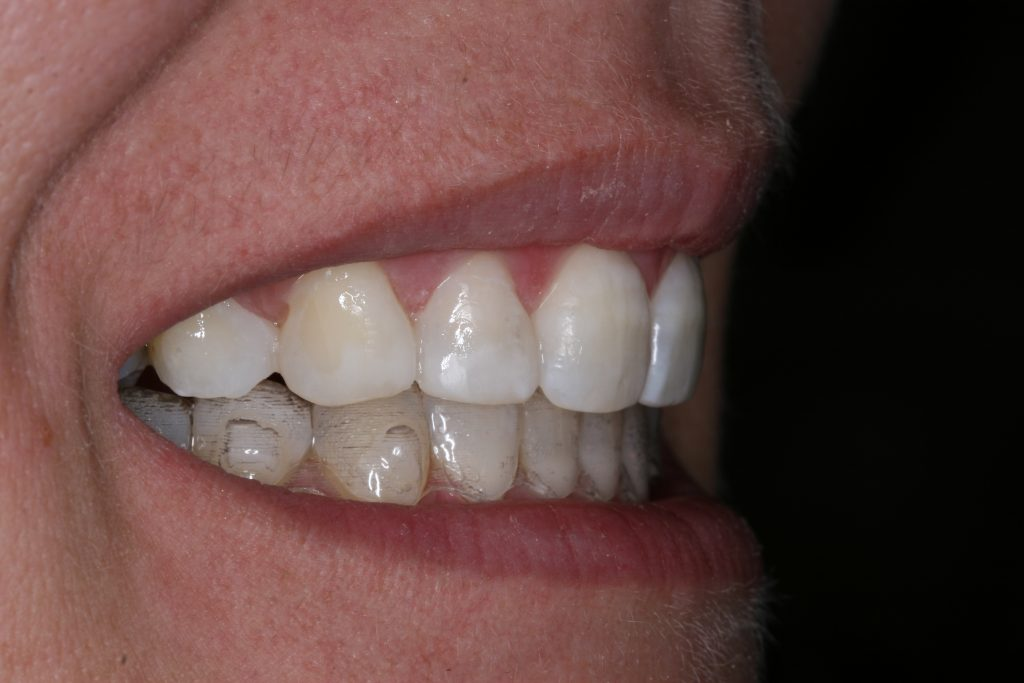 Smile Makeover client 8 after