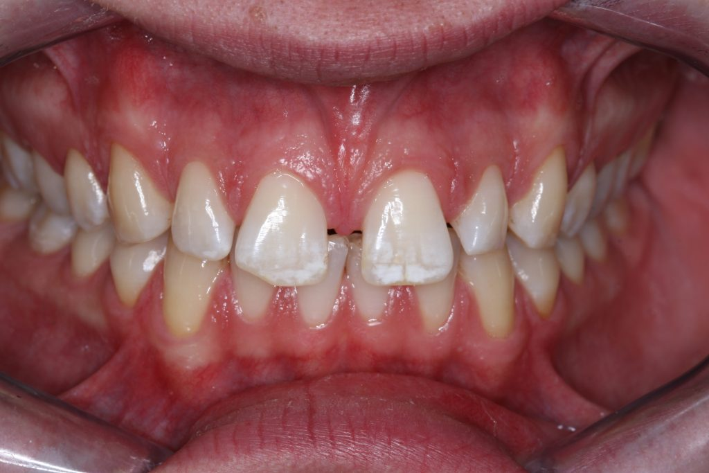 Smile Makeover client 6 before