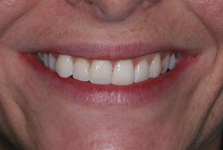 Crooked teeth after client 1