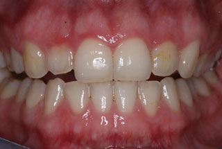 Crooked teeth after client 4