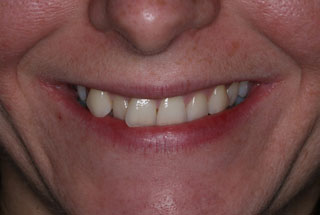 Crooked teeth before client 1
