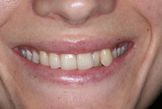 Crooked teeth before client 2