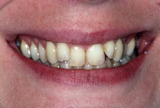 Crooked teeth before client 3