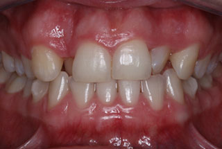 Crooked teeth before client 4