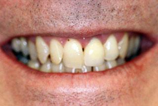 Dental implants after client 2
