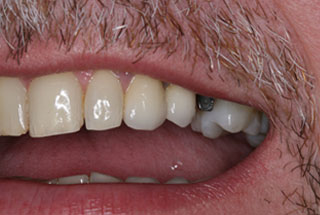 Dental implants before client 1