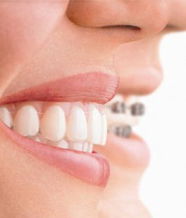 Braces and tooth straightening Hampton Surrey
