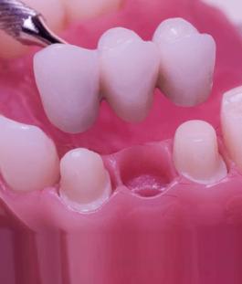 Dental Bridges London