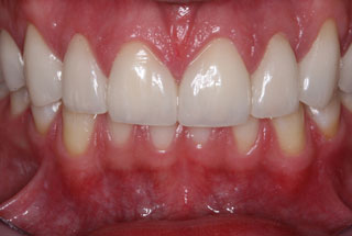 Gaps in teeth after client 1