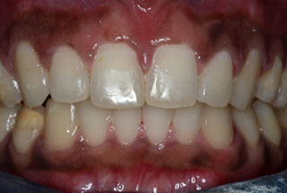 Gaps in teeth after client 2