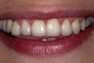 Gaps in teeth after client 3