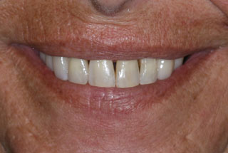 Gaps in teeth after client 4
