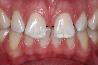 Gaps in teeth before client 1