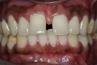 Gaps in teeth before client 2