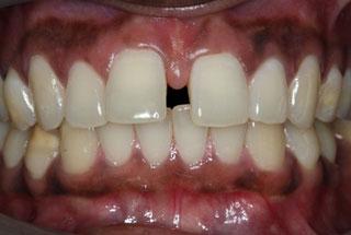Gaps in teeth before client 2
