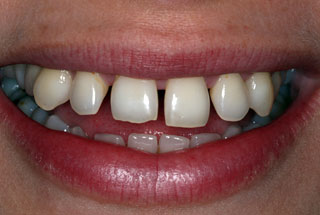 Gaps in teeth before client 3
