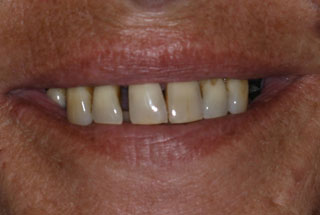 Gaps in teeth before client 4