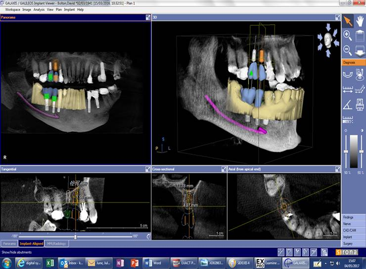 Dental Implants 3D