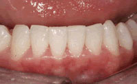 inman aligner after 1 to 9 weeks