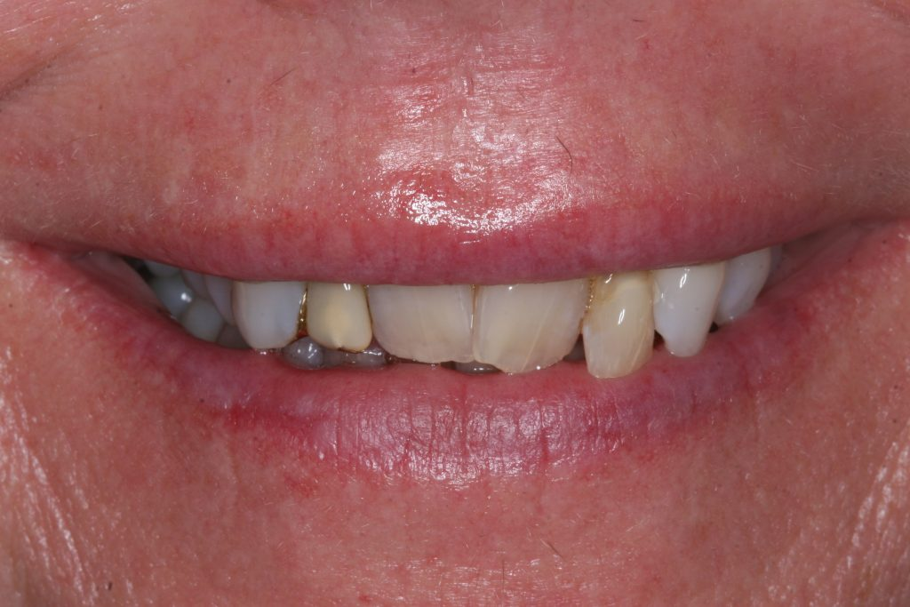 Smile Makeover client 7 before