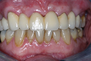 Missing Teeth after client 1