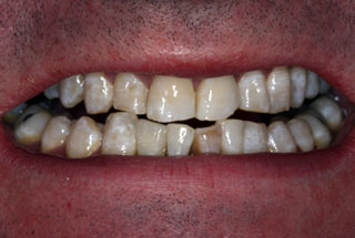 Missing Teeth after client 2