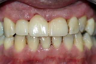 Missing Teeth after client 3