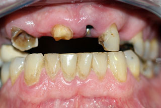 Missing Teeth before client 1
