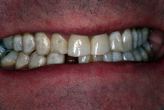 Missing Teeth before client 2