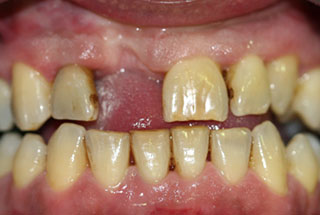 Missing Teeth before client 3