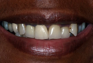 smile-makeover-before-client-2